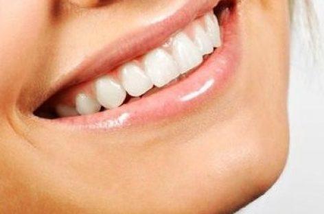 Trucos para tener unos dientes blancos